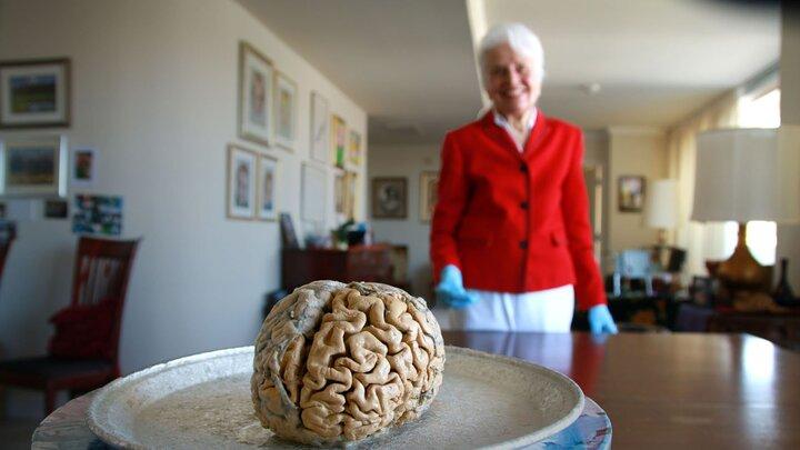 Min passion för hjärnan